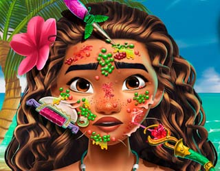 Game Moana Skin Doctor