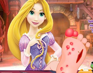 Game Rapunzel foot injuries